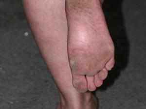 Nongrid_medium_olga-barefoot